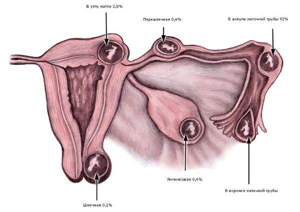 места локализации внематочной беременности
